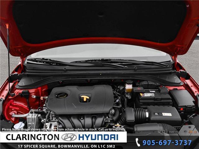 2019 Hyundai Elantra Luxury (Stk: 18906) in Clarington - Image 6 of 24