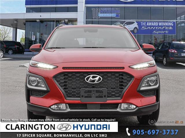2019 Hyundai KONA 2.0L Preferred (Stk: 18898) in Clarington - Image 2 of 24