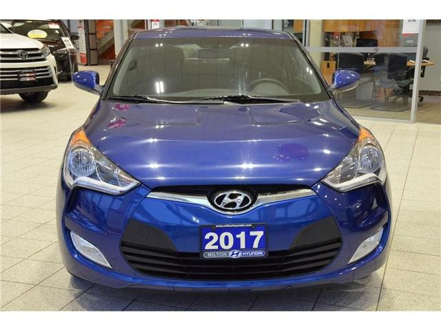 2017 Hyundai Veloster  (Stk: 318821) in Milton - Image 2 of 34