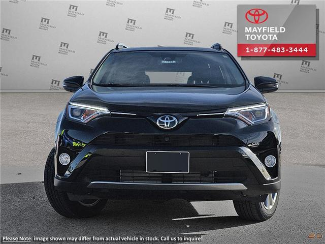 2017 Toyota RAV4 Limited (Stk: 1702009) in Edmonton - Image 2 of 11