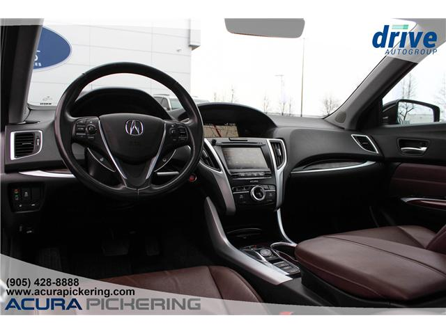 2015 Acura TLX Tech (Stk: AP4719) in Pickering - Image 2 of 33