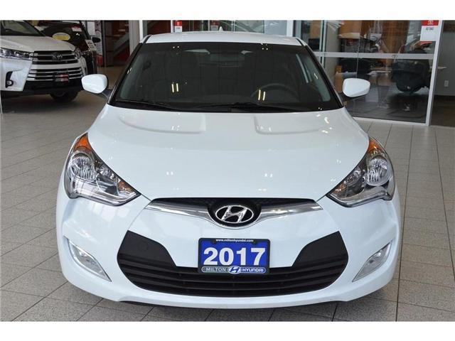 2017 Hyundai  (Stk: 319012) in Milton - Image 2 of 34