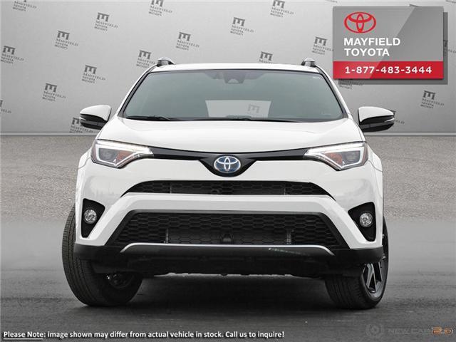 2018 Toyota RAV4 Hybrid SE (Stk: 180100) in Edmonton - Image 2 of 22