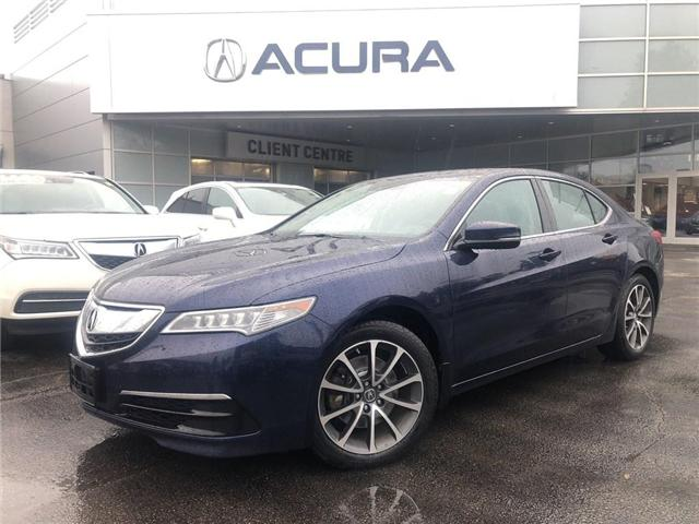 2015 Acura TLX Tech (Stk: 19151A) in Burlington - Image 1 of 21