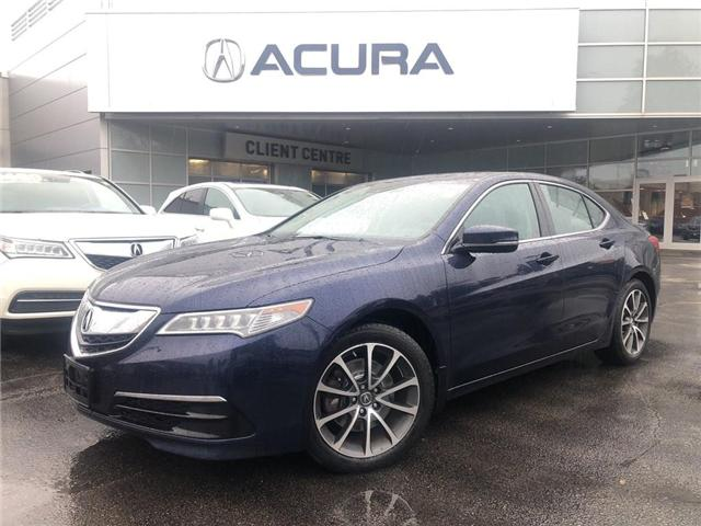 2015 Acura TLX Tech (Stk: 19151A) in Burlington - Image 2 of 21