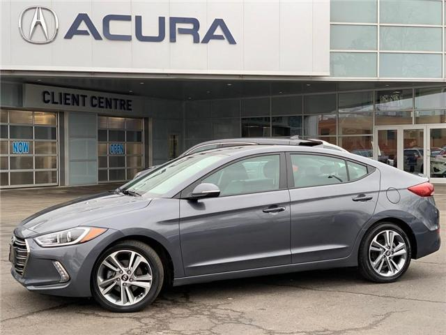 2018 Hyundai Elantra  (Stk: 4004) in Burlington - Image 1 of 19