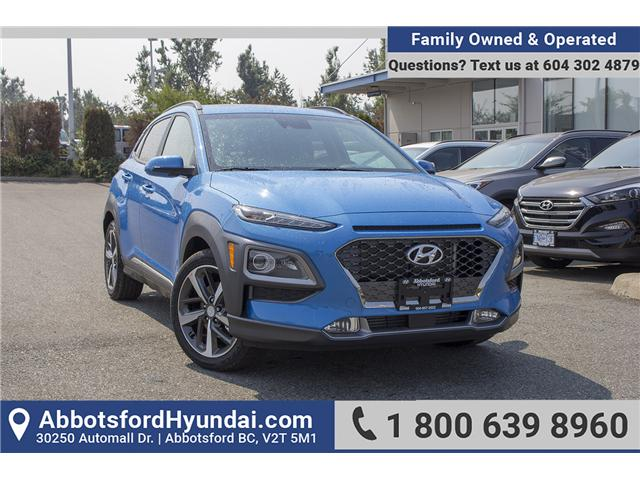 2018 Hyundai Kona 1.6T Ultimate (Stk: JK171571) in Abbotsford - Image 1 of 27