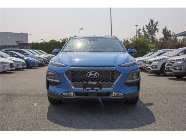 2018 Hyundai Kona 1.6T Ultimate (Stk: JK171571) in Abbotsford - Image 2 of 27