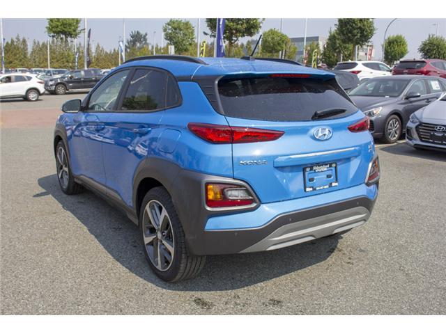 2018 Hyundai Kona 1.6T Ultimate (Stk: JK171571) in Abbotsford - Image 5 of 27