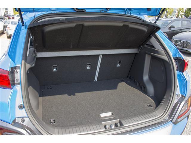 2018 Hyundai Kona 1.6T Ultimate (Stk: JK171571) in Abbotsford - Image 9 of 27
