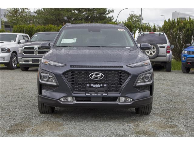 2018 Hyundai KONA 2.0L Luxury (Stk: JK138454) in Abbotsford - Image 2 of 25