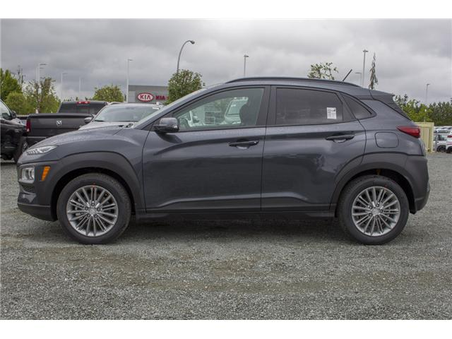 2018 Hyundai KONA 2.0L Luxury (Stk: JK138454) in Abbotsford - Image 4 of 25