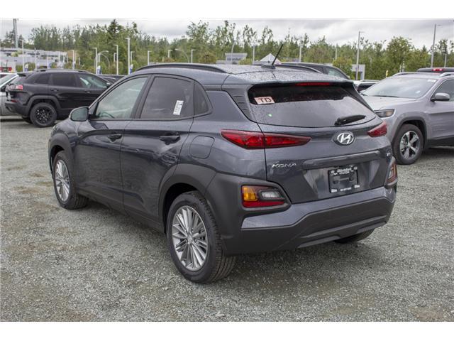 2018 Hyundai KONA 2.0L Luxury (Stk: JK138454) in Abbotsford - Image 5 of 25