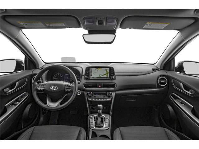 2019 Hyundai KONA 2.0L Preferred (Stk: 33295) in Brampton - Image 2 of 6