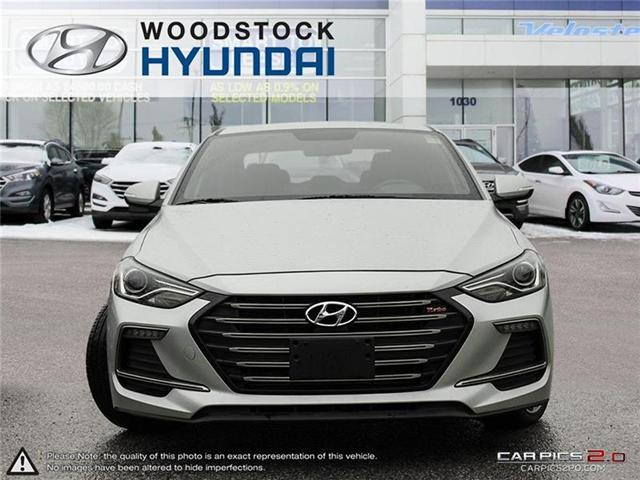 2018 Hyundai Elantra Sport (Stk: HD18036) in Woodstock - Image 2 of 22