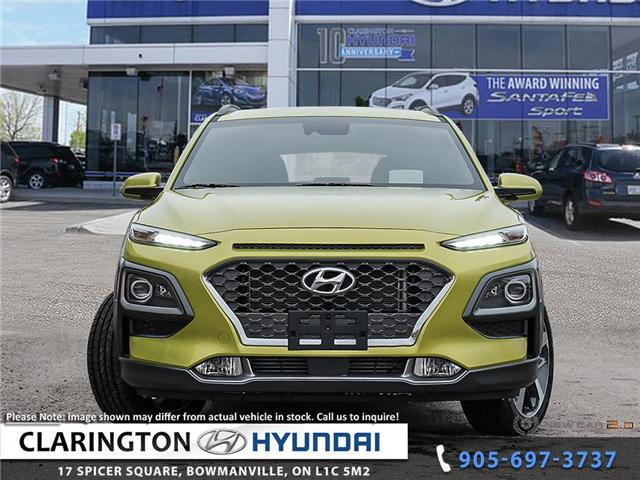 2019 Hyundai KONA 1.6T Ultimate (Stk: 18952) in Clarington - Image 2 of 24