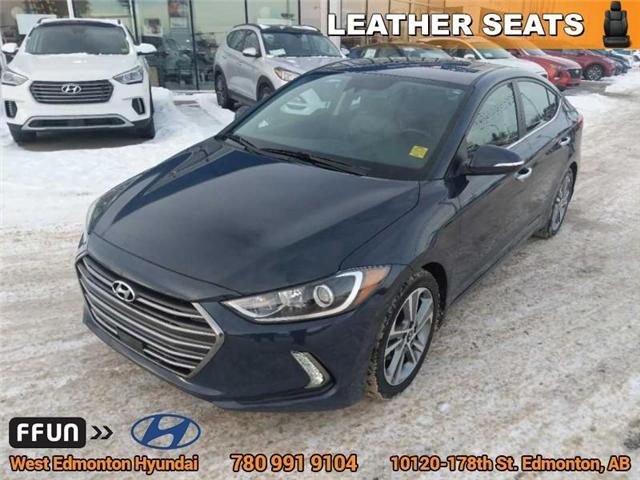 2017 Hyundai Elantra Limited (Stk: 86071A) in Edmonton - Image 2 of 25