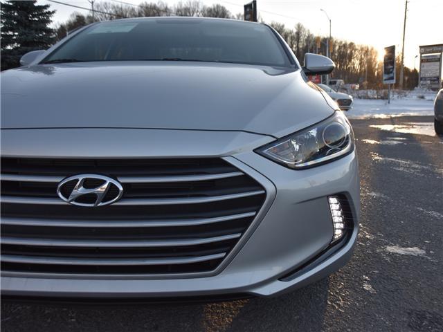 2017 Hyundai Elantra GLS (Stk: R86329A) in Ottawa - Image 3 of 11