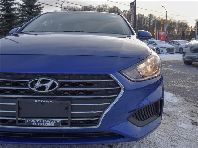 2018 Hyundai Accent GL (Stk: X1240) in Ottawa - Image 3 of 11