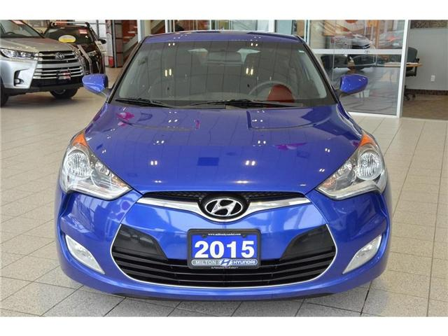 2015 Hyundai Veloster  (Stk: 224170A) in Milton - Image 2 of 36