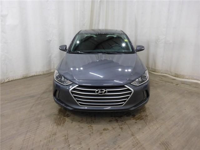 2017 Hyundai Elantra Limited SE (Stk: 19011664) in Calgary - Image 2 of 30