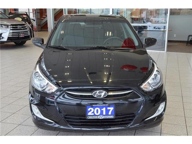 2017 Hyundai Accent SE (Stk: 340048) in Milton - Image 2 of 37