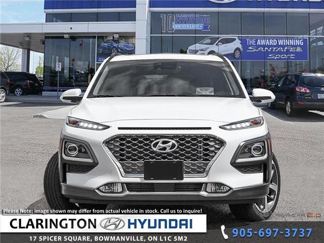 2019 Hyundai KONA 1.6T Ultimate (Stk: 19011) in Clarington - Image 2 of 24
