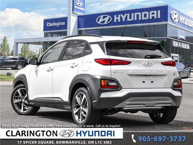 2019 Hyundai KONA 1.6T Ultimate (Stk: 19011) in Clarington - Image 4 of 24