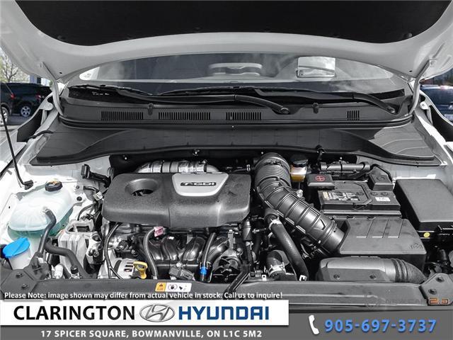 2019 Hyundai KONA 1.6T Ultimate (Stk: 19011) in Clarington - Image 6 of 24