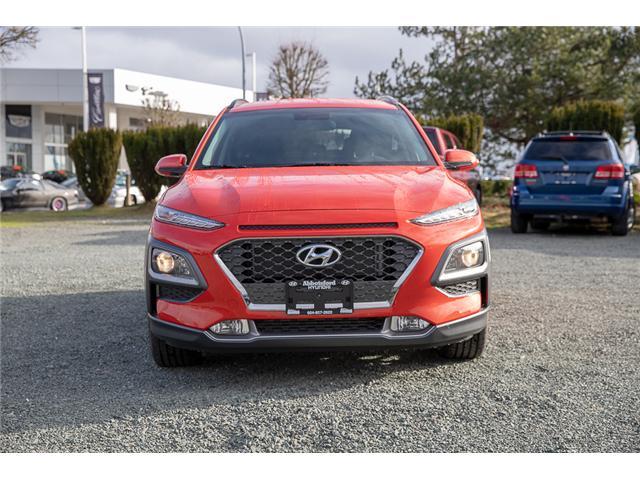2019 Hyundai KONA 1.6T Trend (Stk: KK267721) in Abbotsford - Image 2 of 26