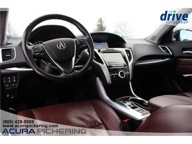 2015 Acura TLX Elite (Stk: AP4713) in Pickering - Image 2 of 28