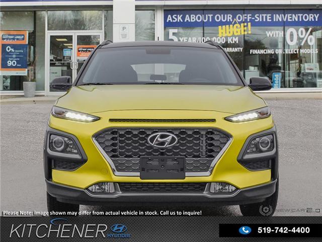 2019 Hyundai KONA 1.6T Trend (Stk: 58634) in Kitchener - Image 2 of 23