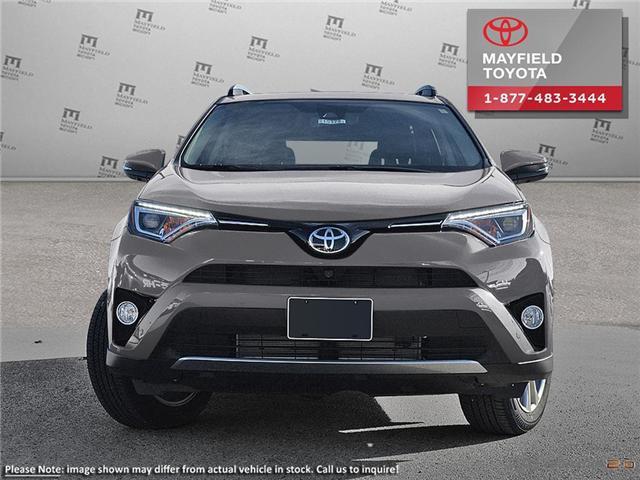 2017 Toyota RAV4 Limited (Stk: 170616) in Edmonton - Image 2 of 11