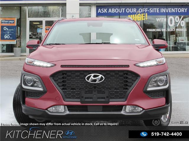 2019 Hyundai KONA 2.0L Luxury (Stk: 58645) in Kitchener - Image 2 of 23