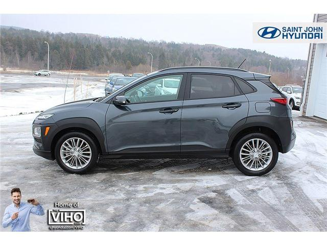 2018 Hyundai KONA  (Stk: U2048) in Saint John - Image 4 of 23