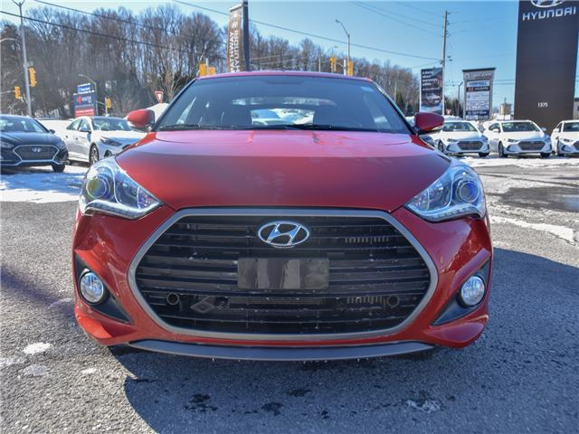 2016 Hyundai Veloster Turbo (Stk: P3249) in Ottawa - Image 2 of 11