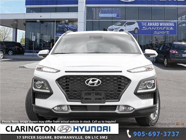 2019 Hyundai KONA 2.0L Luxury (Stk: 19077) in Clarington - Image 2 of 24