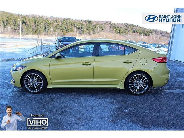 2018 Hyundai Elantra  (Stk: 97534A) in Saint John - Image 3 of 21