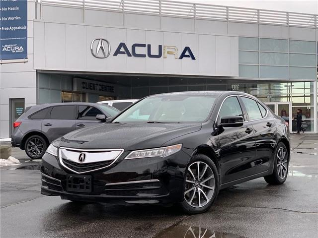 2015 Acura TLX Tech (Stk: 4007) in Burlington - Image 1 of 30