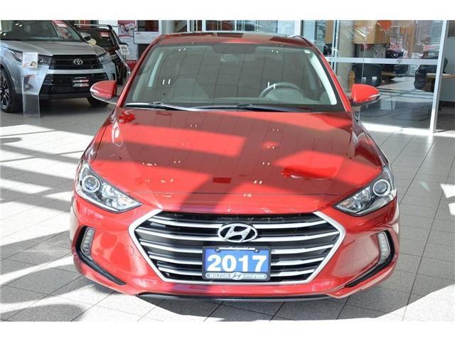 2017 Hyundai Elantra  (Stk: 088856A) in Milton - Image 2 of 39