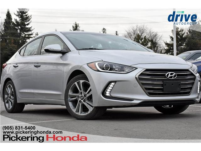 2017 Hyundai Elantra Limited (Stk: P4589) in Pickering - Image 1 of 24