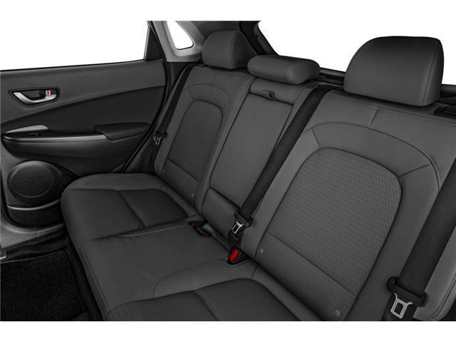 2019 Hyundai Kona 2.0L Essential (Stk: 19KN022) in Mississauga - Image 8 of 9