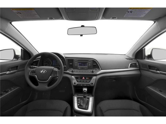 2017 Hyundai Elantra  (Stk: P7043) in Brockville - Image 5 of 9