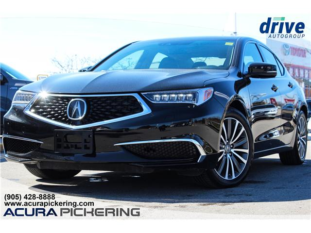 2018 Acura TLX Tech (Stk: AS032CC) in Pickering - Image 1 of 30