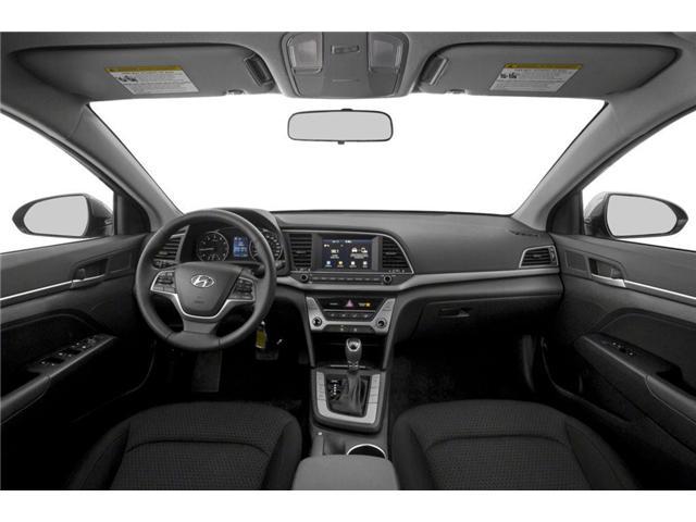 2017 Hyundai Elantra GL (Stk: 28588A) in Scarborough - Image 5 of 9