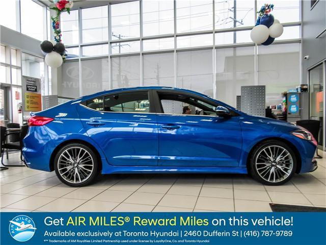 2018 Hyundai Elantra Sport Tech (Stk: N20388) in Toronto - Image 1 of 21