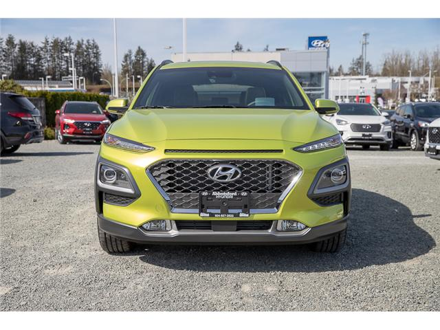 2019 Hyundai KONA 1.6T Ultimate (Stk: KK263753) in Abbotsford - Image 2 of 30