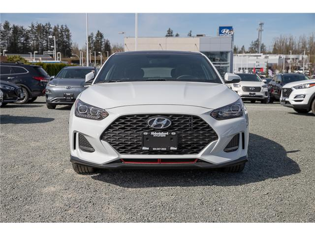 2019 Hyundai Veloster Turbo (Stk: KO009985) in Abbotsford - Image 2 of 27