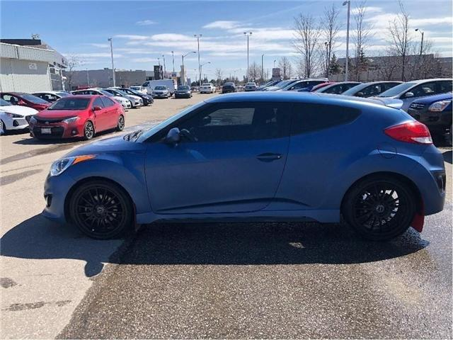 2016 Hyundai Veloster Turbo RALLEY (Stk: 3986) in Brampton - Image 2 of 18