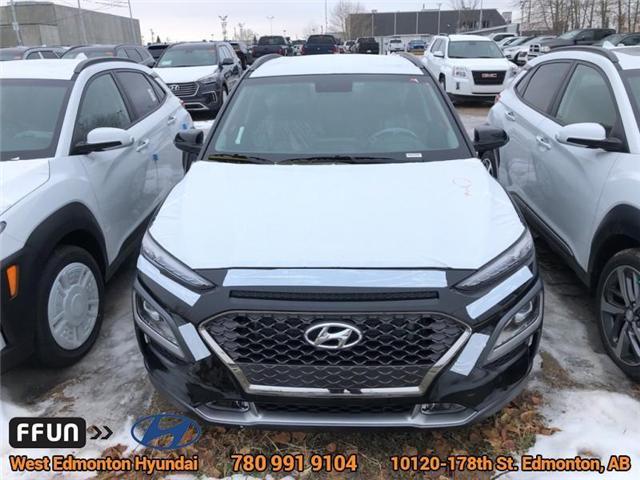 2019 Hyundai KONA 1.6T Trend (Stk: KN94392) in Edmonton - Image 2 of 4
